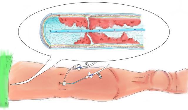 ny-og-bedre-behandling-ved-blodbropp