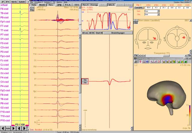 graf epilepsikirurgi