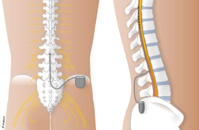 spinal-stimulering-highres