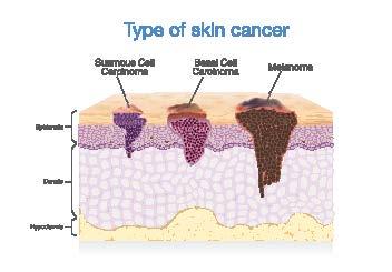 hudkreft